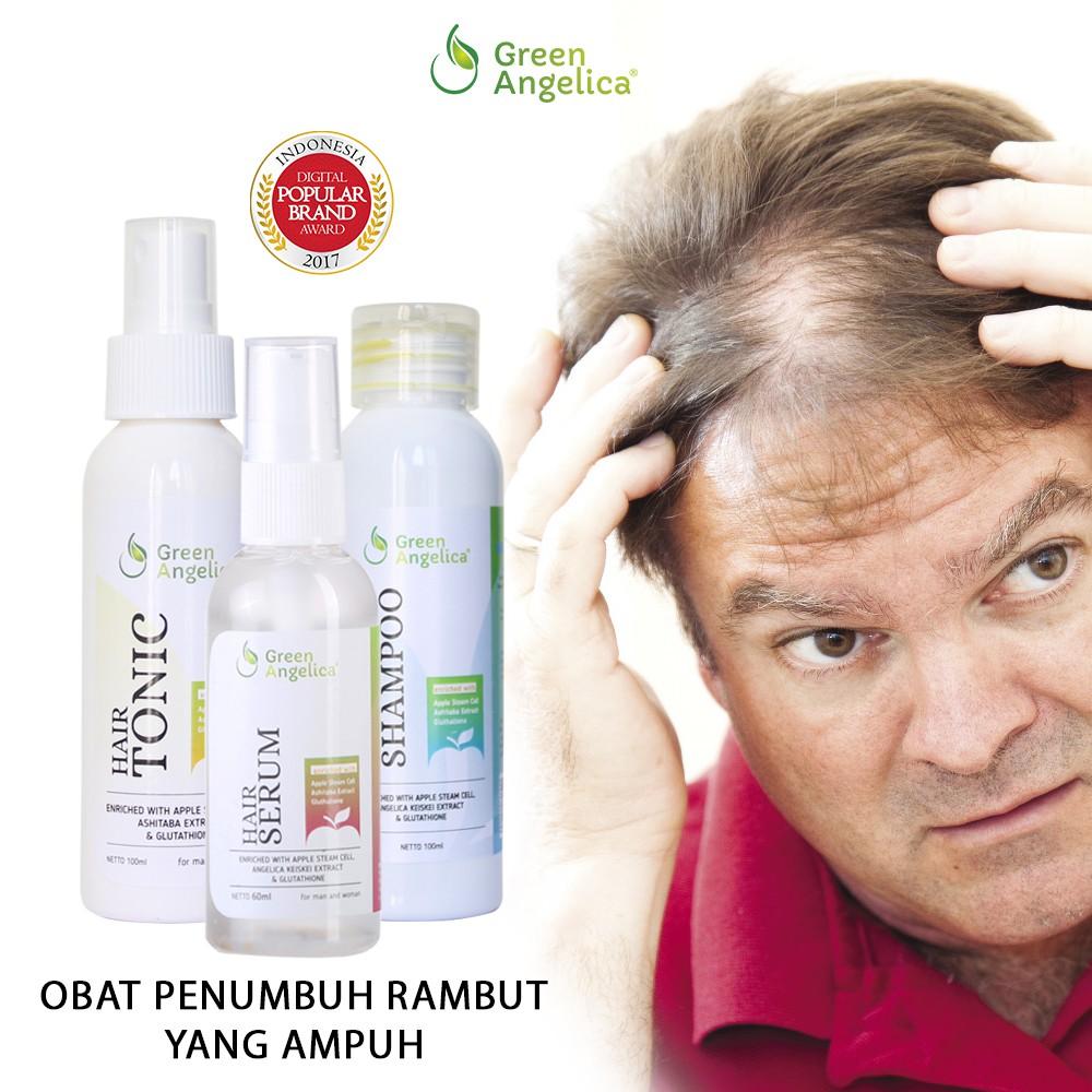 Hair Tonic Penumbuh Rambut Green Angelica Obat Rambut Botak Rontok Menumbuhkan Rambut Botak Shopee Indonesia