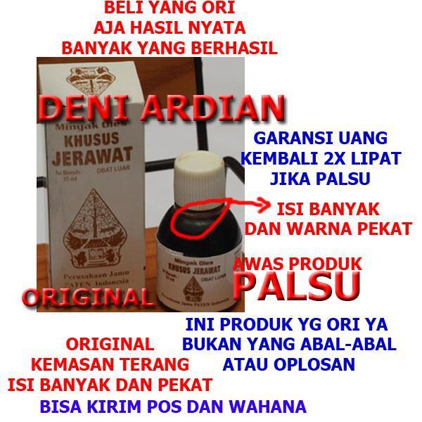 Minyak Oles Jerawat Cap Wayang Asli Dan Palsu