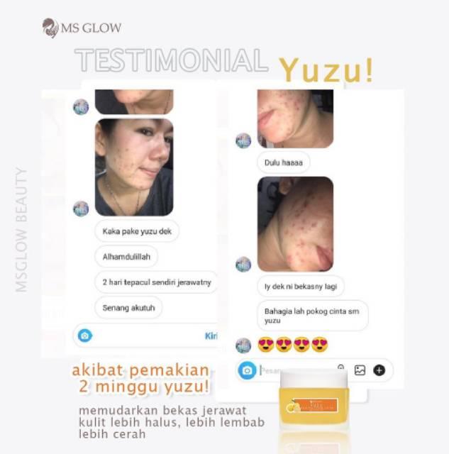Ms Glow Juice Yuzu Mosturizer Shopee Indonesia