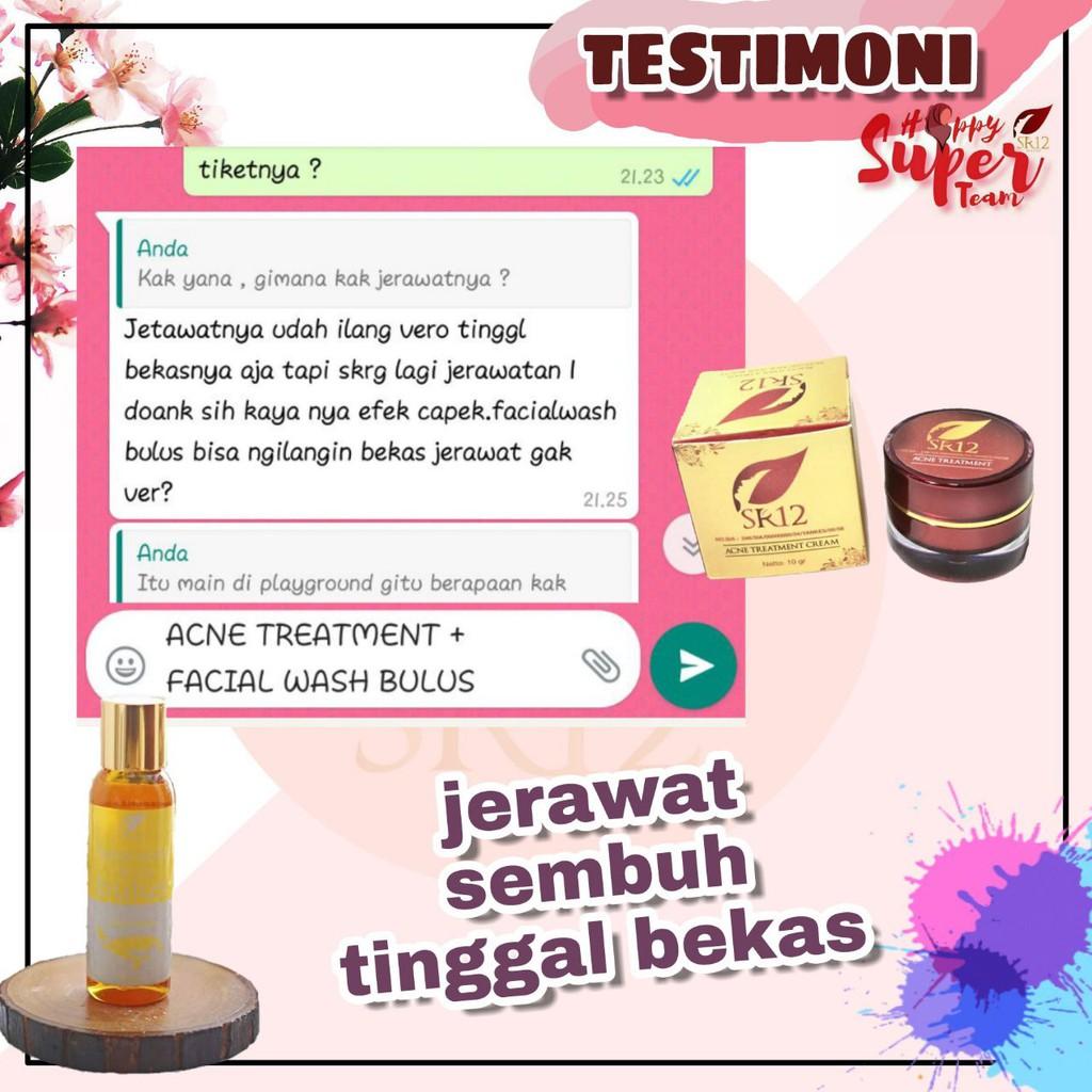 Cream Obat Anti Jerawat Meradang Batu Bernanah Bruntusan Pasir Punggung Terbaik Krim Herbal Alami Shopee Indonesia