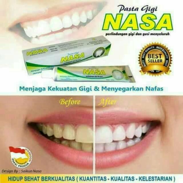 Solusi Gigi Putih Karang Gigi Rontok Ngilu2 Hilang Dll Pasta Gigi