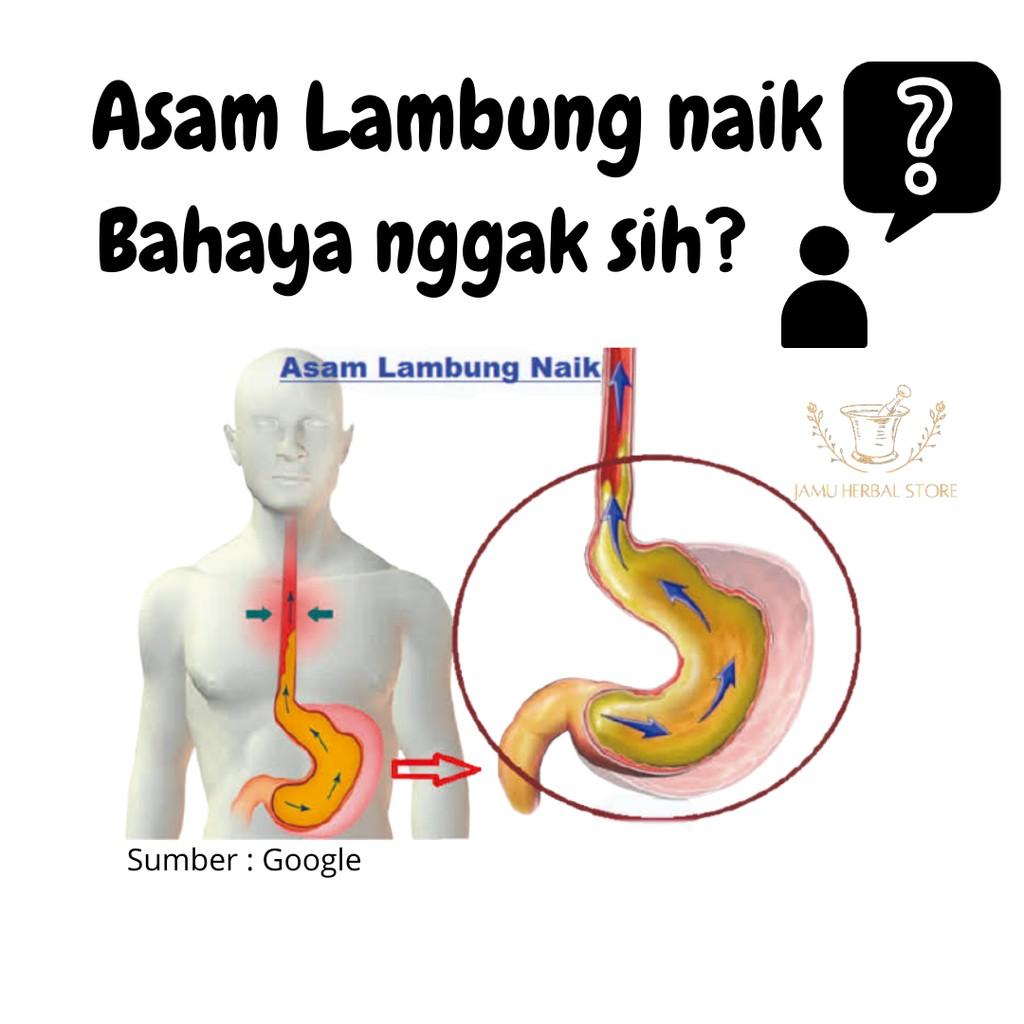 Obat Sakit Perut Asam Lambung Naik Gerd Nyeri Ulu Hati Maag Herbal Alami Mucosafit Shopee Indonesia