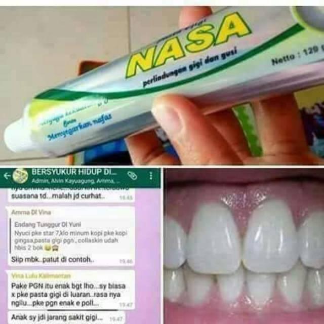 Pasta gigi nasa - perlindungan gigi gusi - memutihkan gigi - menghilangkan karang  gigi - odol nasa  198c3f99d4