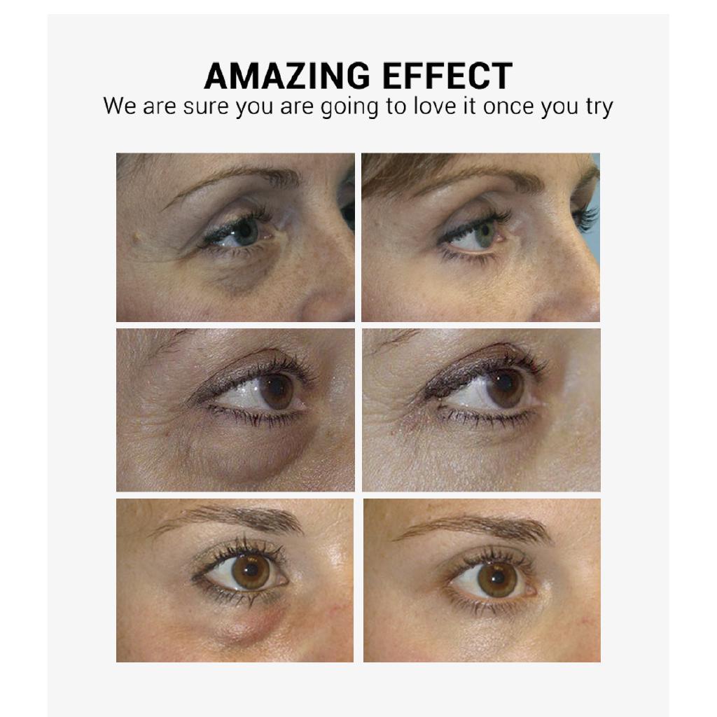 [Bayar Di Tempat]LANBENA Vitamin C Eye Masks 50pcs 5