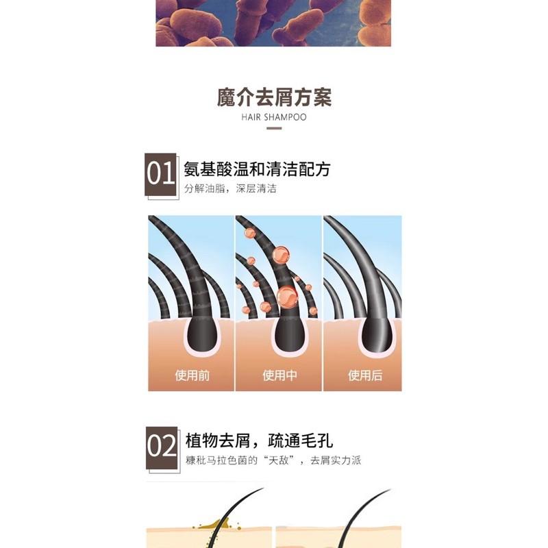 M-Joptim Anti-dandruff Essential Oil Hair Shampoo-6