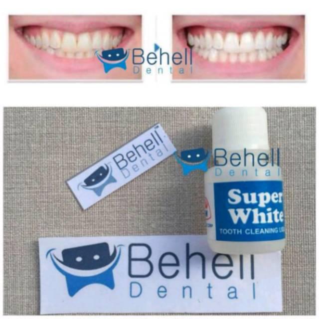 Pemutih Gigi Ampuh Super White   superwhite   obat penghilang karang gigi d8c70be685