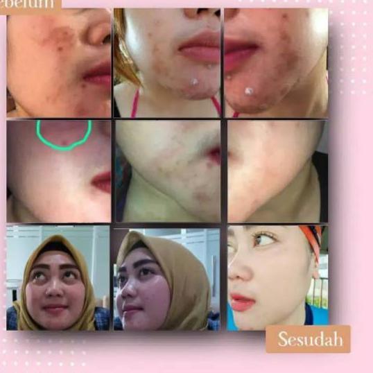 NR21 Anti Aging Spesial Marwah Skincare HALAL & BPOM ..,,