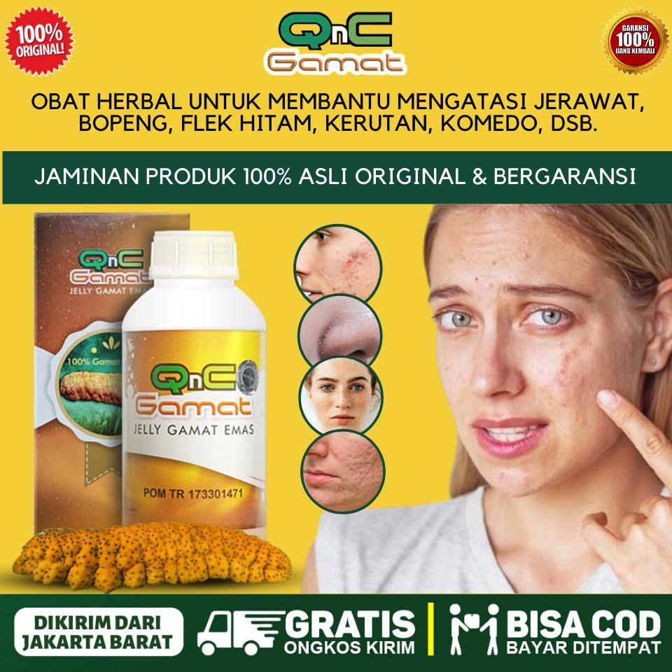Obat Jerawat Bernanah Penghilang Jerawat Dan Bekasnya Di Punggung Badan Dagu Pipi Hidung Qnc Gamat Shopee Indonesia
