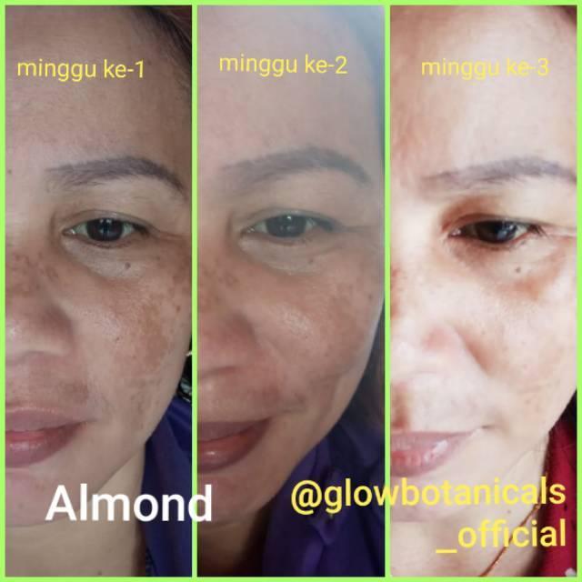 Almond Oil Serum Flek Jerawat Flek Hitam Antiaging Penuaan Dini Bisa Cod Shopee Indonesia
