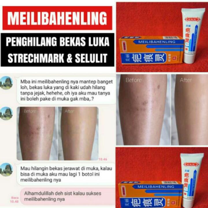 PENGHILANG BEKAS CACAR , KORENG , JERAWAT DAN LUKA / MEILIBAHENLING | Shopee Indonesia