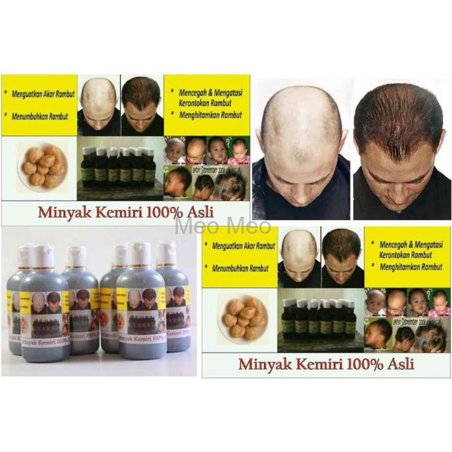 ready minyak kemiri penumbuh alis dan perawatan rambut rontok paket Gambar Minyak Kemiri Untuk Rambut
