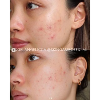 Skin Game Acne Warrior 30 gr #4