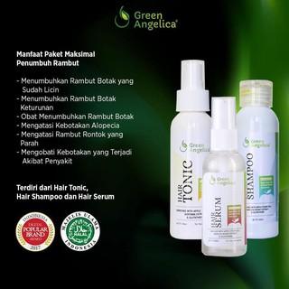 Obat Rambut Green Angelica Penumbuh Rambut Botak Suka