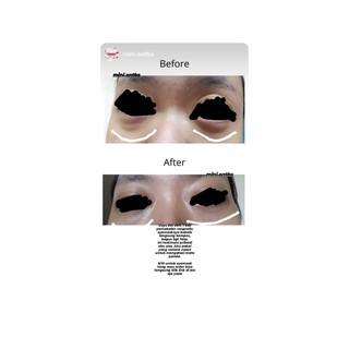 Bobebi eye mask magnetic masker mata BPOM 6
