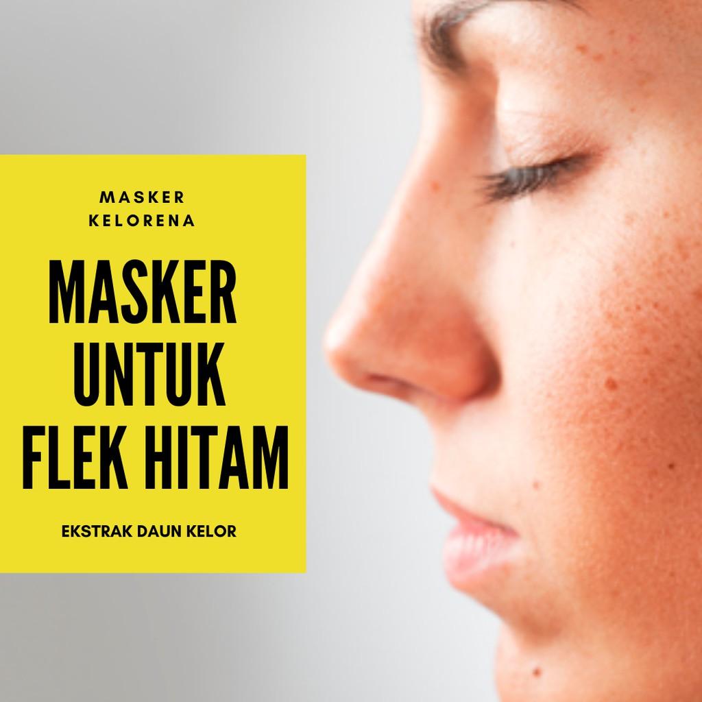 Obat Menghilangkan Flek Hitam Di Wajah Membandel Flek Hitam Di Pipi Hidung Keloreena Flek Hitam Shopee Indonesia