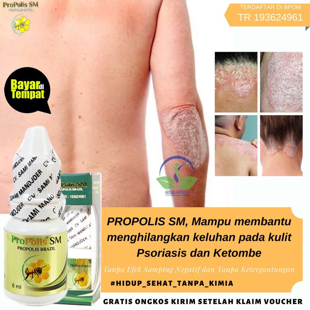 Obat Untuk Ketombe Akut Di Kulit Kepala Berkerak Kering Bau Luka Mengelupas Tebal Gatal Jamur Shopee Indonesia