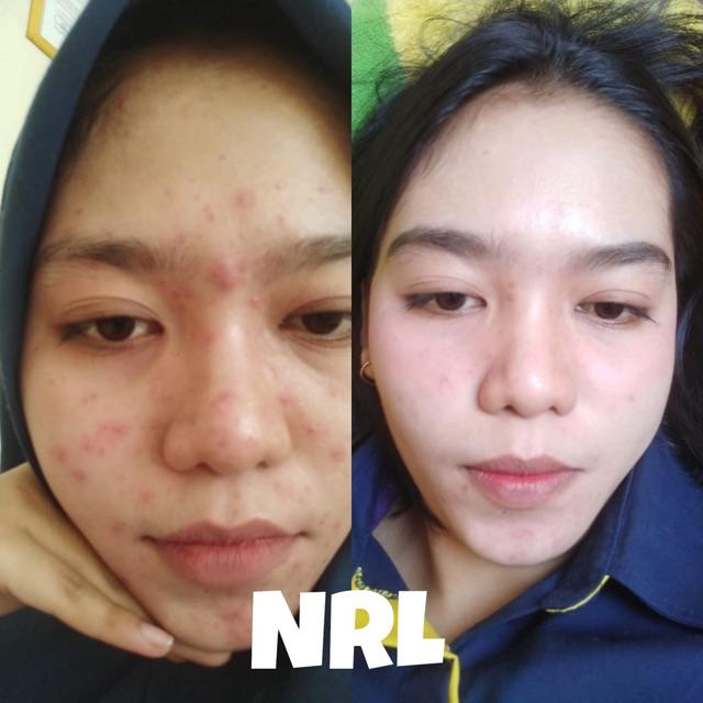 Cream Acne Nrl Cream Racikan Cream Pemutih Aman Shopee Indonesia