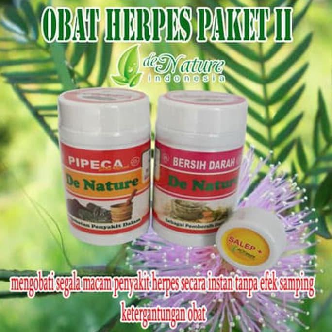 Salep Obat Herpes Genital Wajah Kelamin Punggung Simpleks Herbal Hgs0x 74 Shopee Indonesia