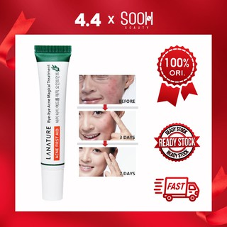 Lanature-Bye-bye Acne Magical magical Treatment spot cream anti acne LA NATURE Hilangkan Jerawat thumbnail