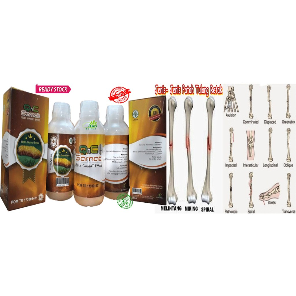 Qnc Jelly Gamat Original Asli 300ml Ekstrak Teripang Gold G Emas 300 Ml Dijamin Ter Shopee Indonesia