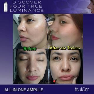 Skincare Jerawat Trulum Serum Penghilang Flek Hitam Bekas ...