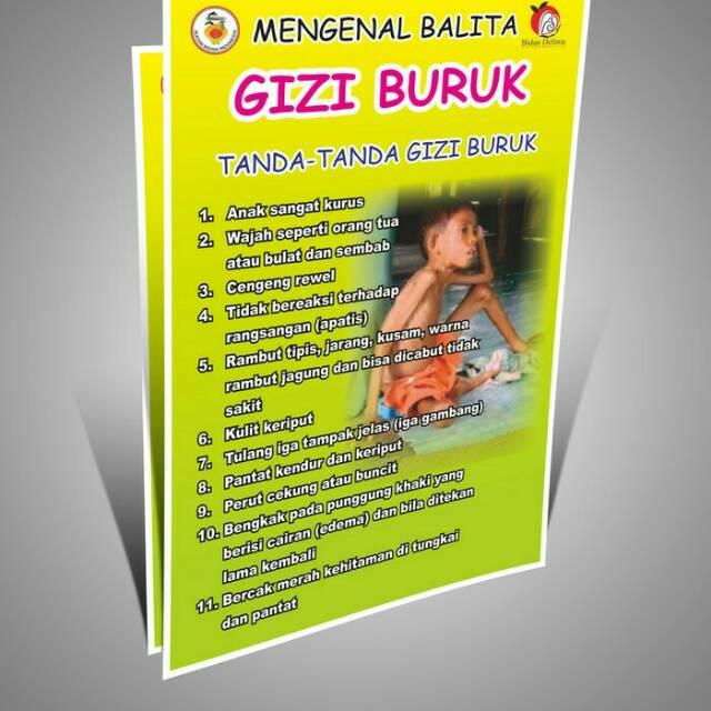 Poster gizi buruk shopee indonesia ccuart Gallery