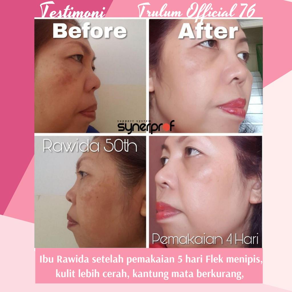 Skincare Untuk Menghilangkan Flek Hitam Bekas Jerawat Noda Hitam Terbaik Bpom Untuk Usia 40 Tahun Shopee Indonesia