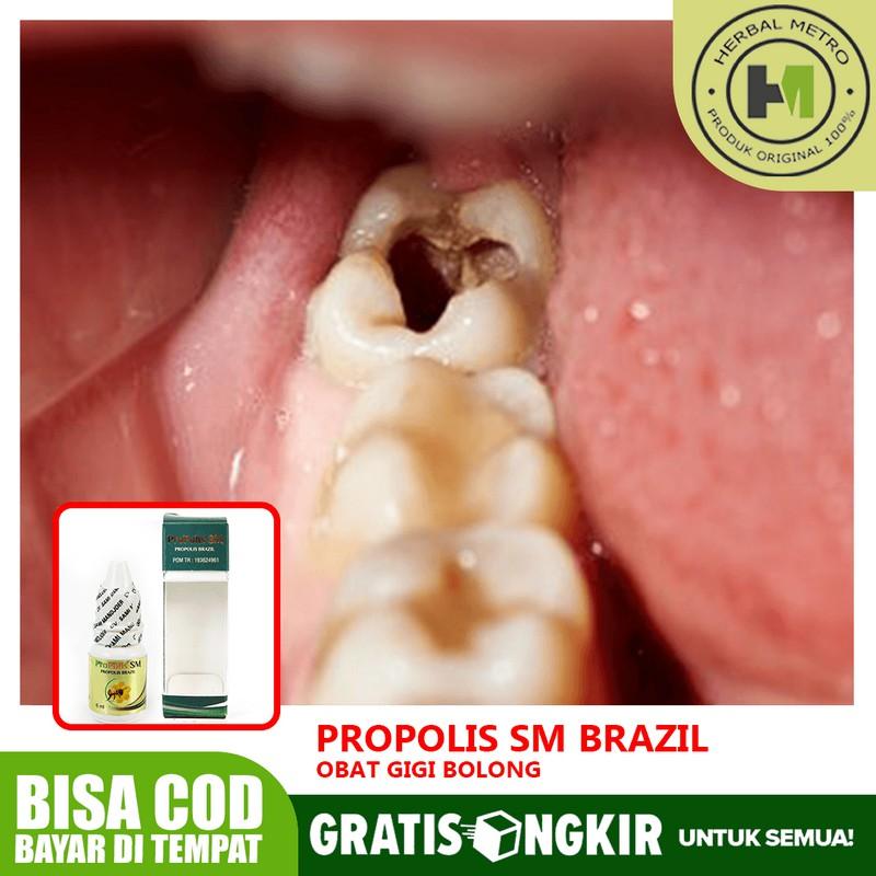 Obat Gigi Bolong Gigi Keropos Gigi Ngilu Anak Dan Dewasa Herbal Propolis Sm Shopee Indonesia